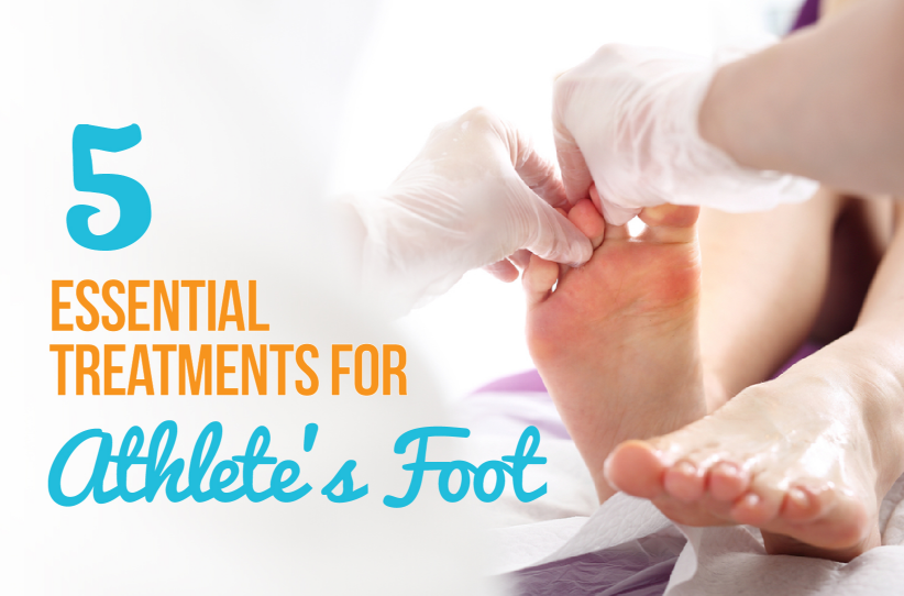 5 Essential Treatments for Athlete's Foot