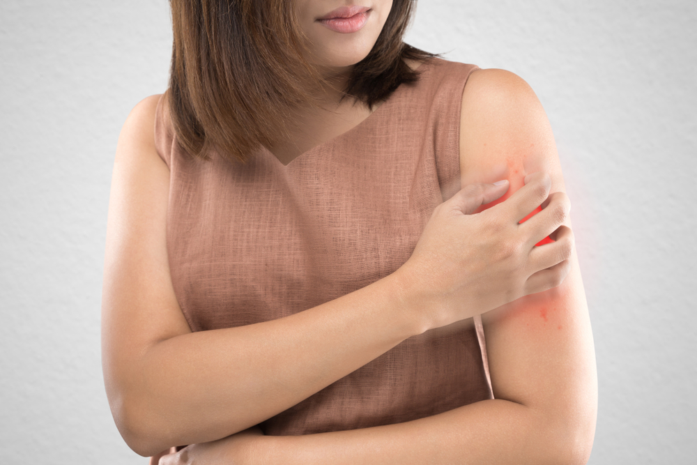 ALLERGIES TO INSECT STINGS - WatsonsHealth