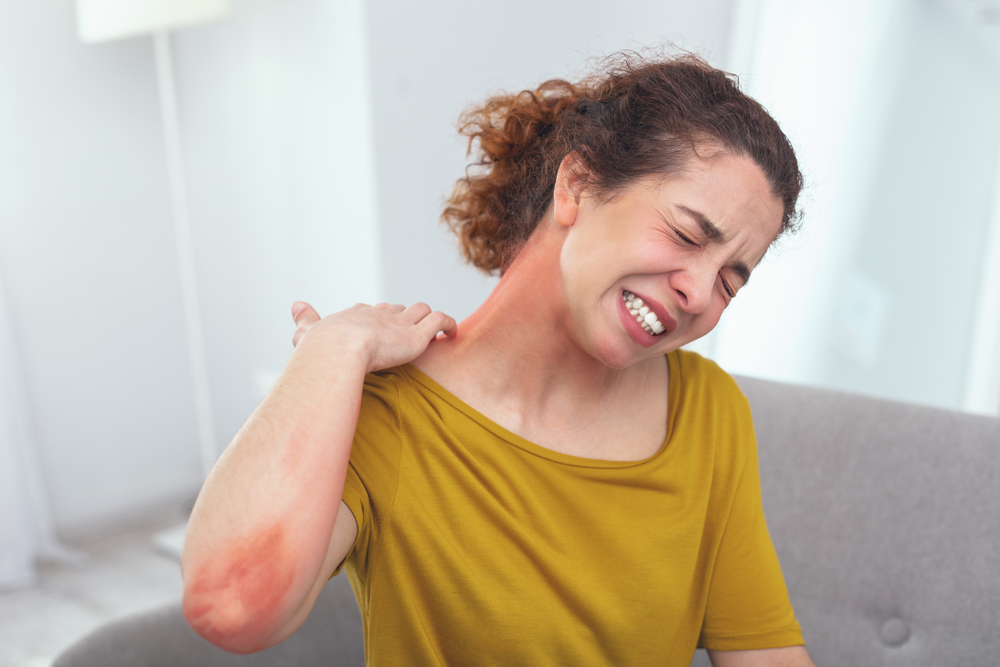 Stress and Psoriasis: How to Control Psoriasis Triggers - WatsonsHealth