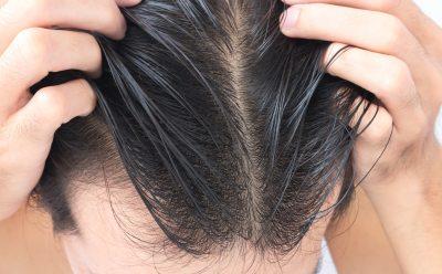 5 Best Vitamins for Hair Growth