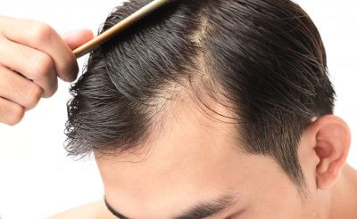 Is Stress behind Your Hair Loss